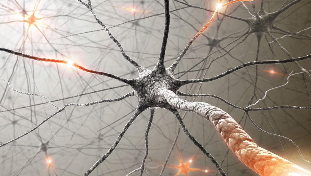 Cura para Alzheimer: novo estudo abre uma pequena janela de esperança