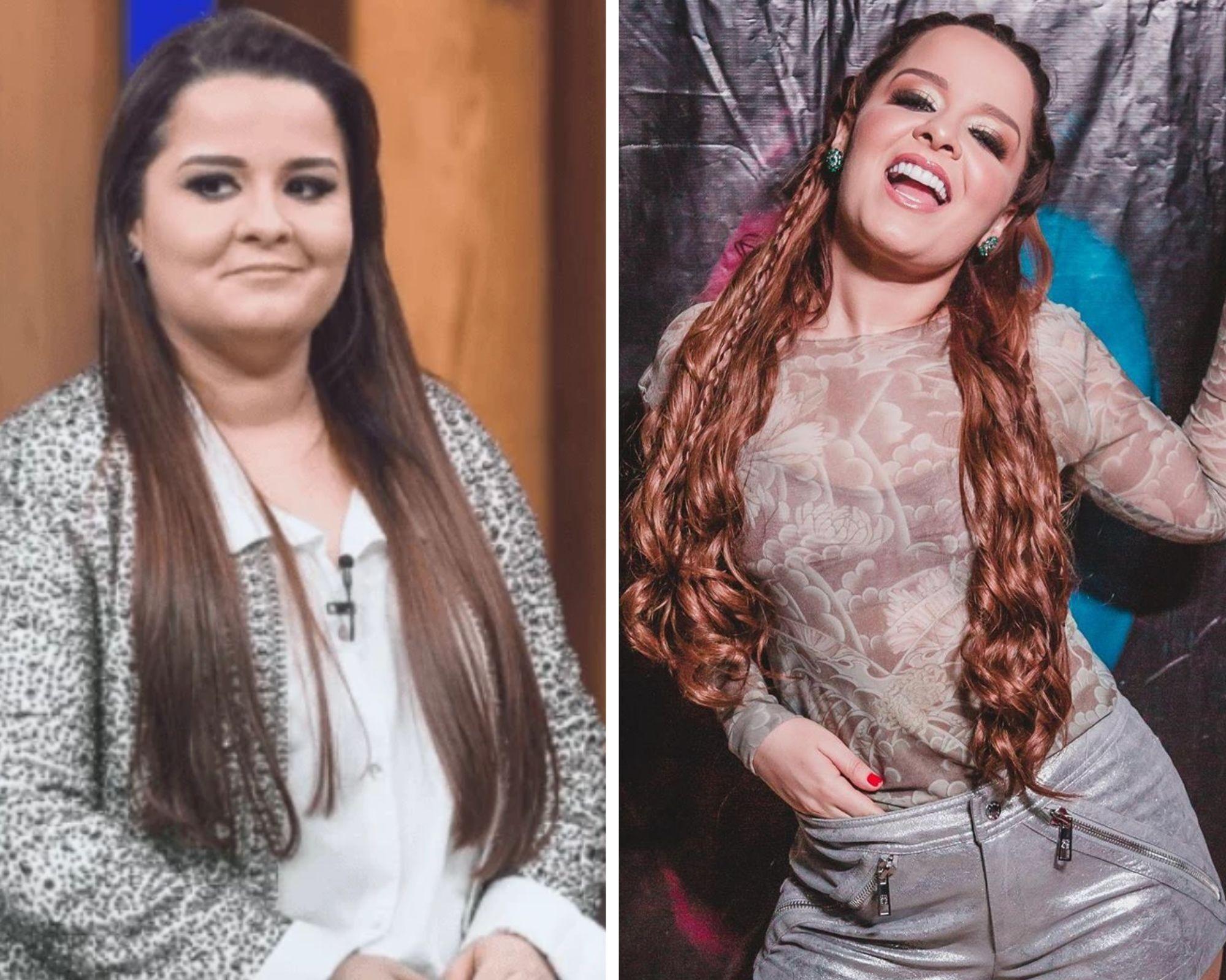 Veja antes e depois de 6 famosos que fizeram cirurgia para emagrecer